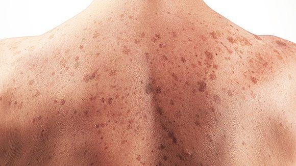 A la alza en Aguascalientes enfermedades de transmisión sexual y cáncer de piel