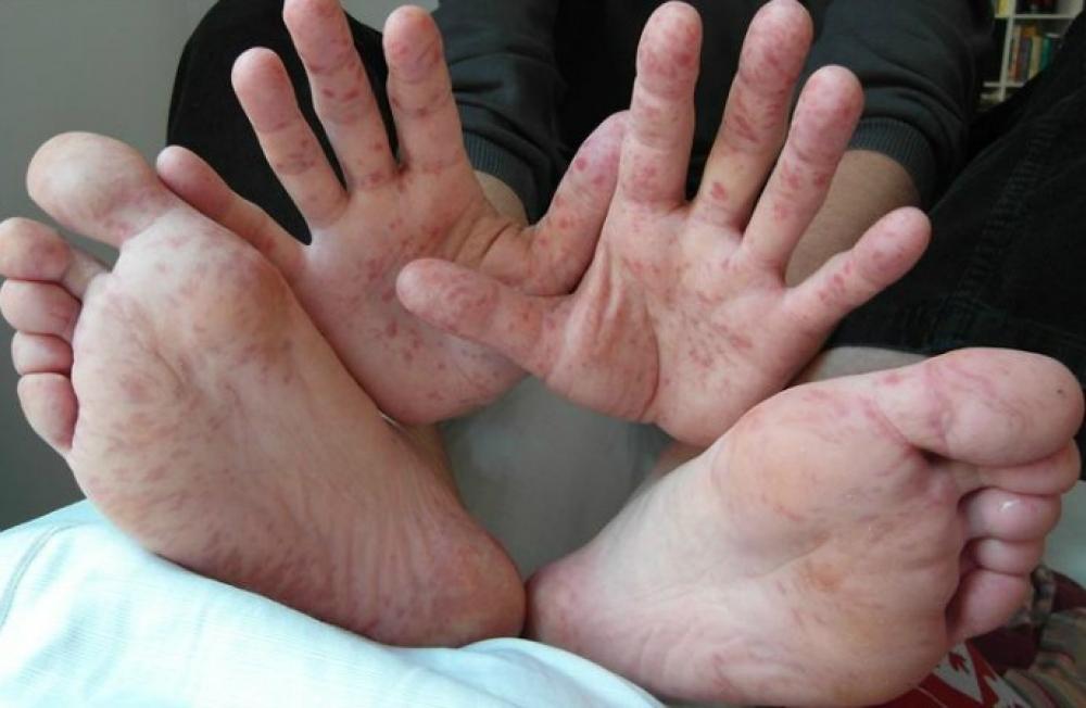 ISSEA: No Existe Alerta Epidemiológica en Aguascalientes por el Virus de Coxsackie