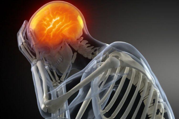 El dolor de cabeza afecta al 50% de la población: ISSEA